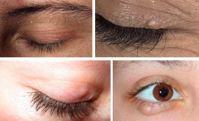 Жировик на веке глаза фото и лечение