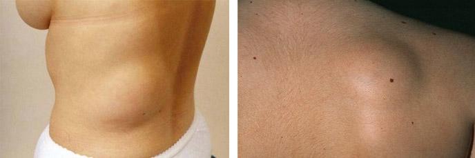 Жировики под кожей на теле