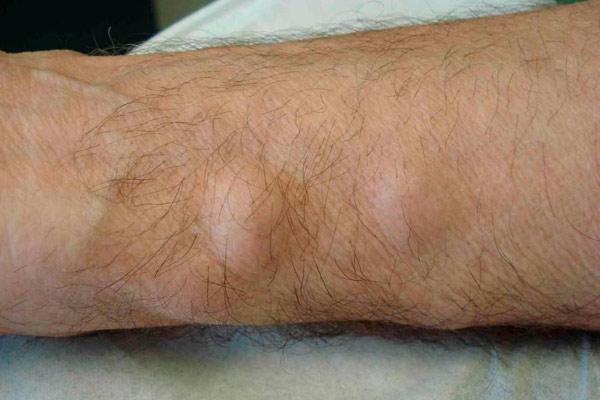 Липома мягких тканей бедра