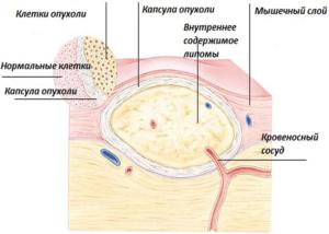 Как выглядят жировики на теле