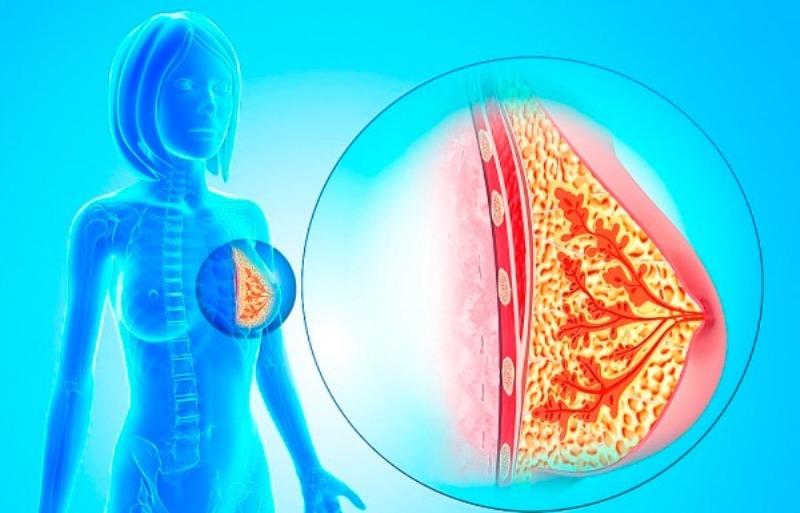 Внутрипротоковая папиллома молочной железы - лечение и удаление
