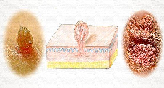 Как различить папилломы и кондиломы