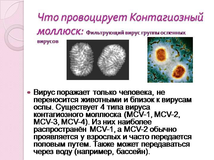 Мкб 10 коды моллюска