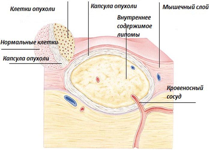 Удаление жировика на шее