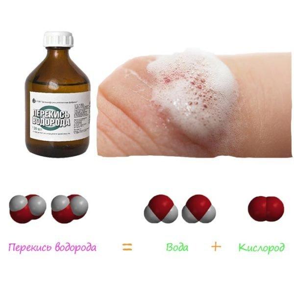 Перекись водорода лечение папиллом thumbnail