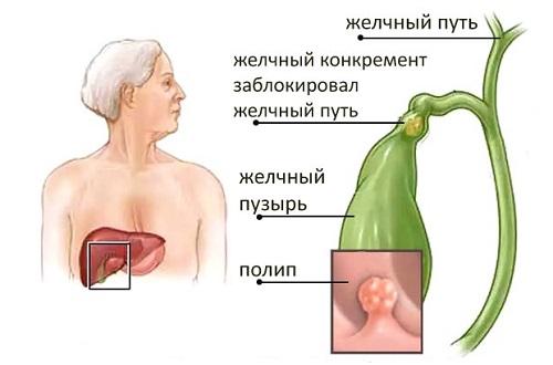 Народные средства от папиллом желчного пузыря